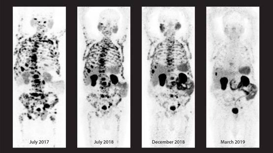 التقدم الحاصل في أسلوب التشخيص العلاجي المطبَّق على مريض يبلغ من العمر ٨٢ عاماً والمصاب بسرطان البروستاتا الذي انتشر ليصل إلى العقد اللمفاوية والعظام. الحالة في بداية تطبيق أسلوب التشخيص العلاجي (أقصى اليسار) وصولاً إلى حالة شبه الخمود الكامل للمرض (أقصى اليمين).   (الصورة من:المركز الطبي في الجامعة الأمريكية في بيروت)g